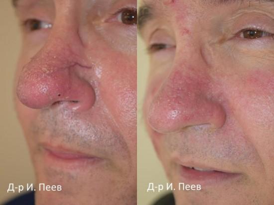 розацея лечение резултати
