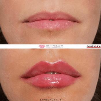 красивите устни